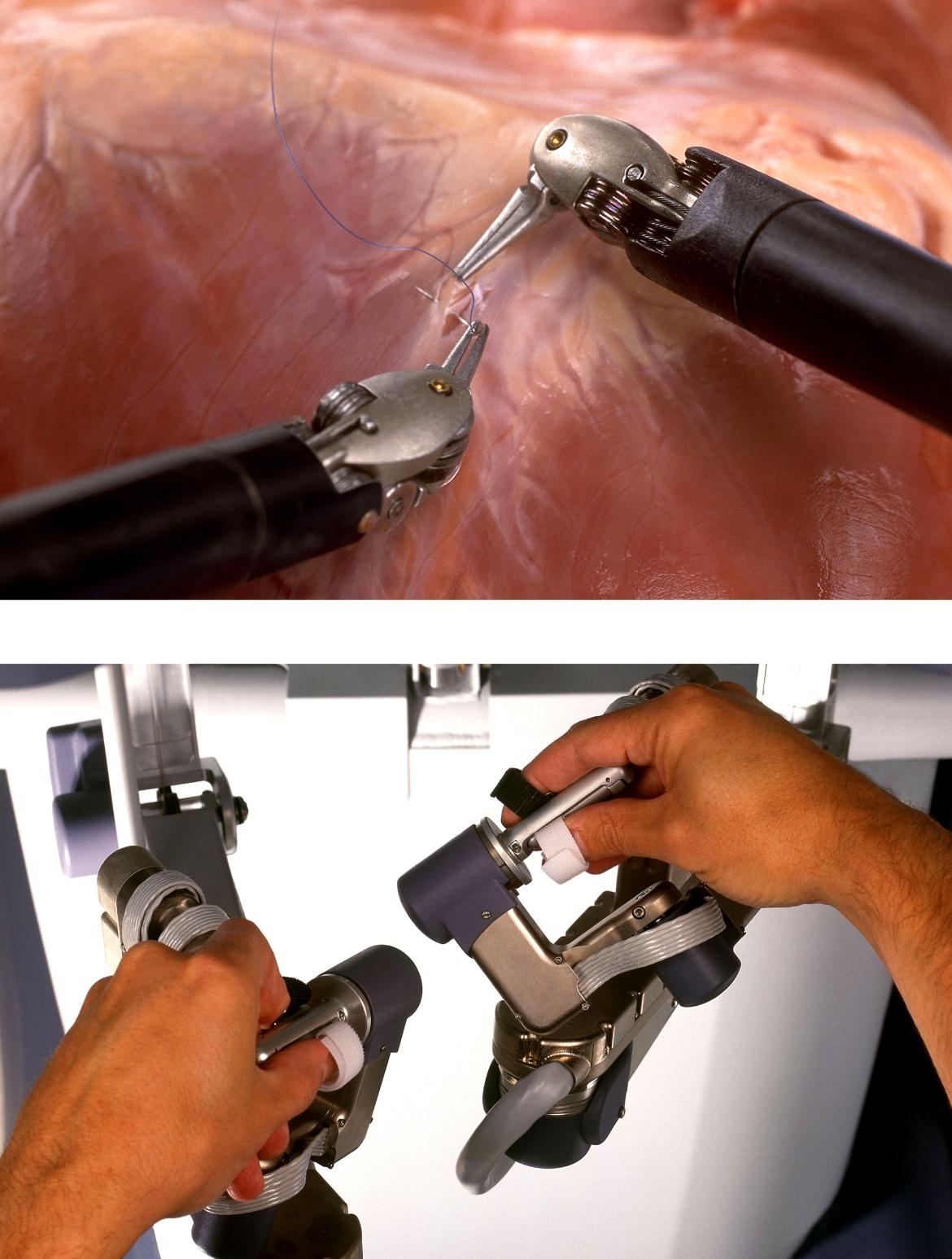 Modern robot-assisted surgery.